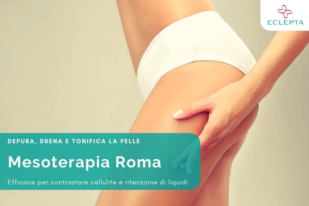 mesoterapia roma