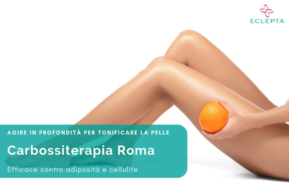 carbossiterapia roma